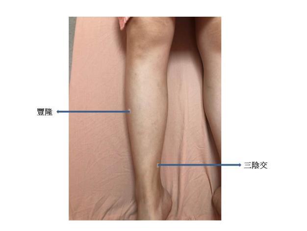 消水腫的穴位埋線.JPG