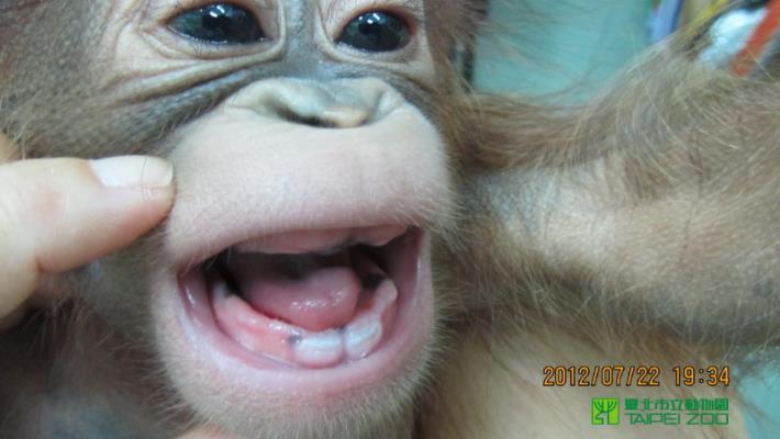 Growing front teeth
