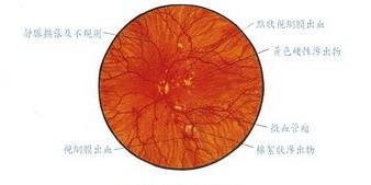 基底型糖尿病視網膜病變