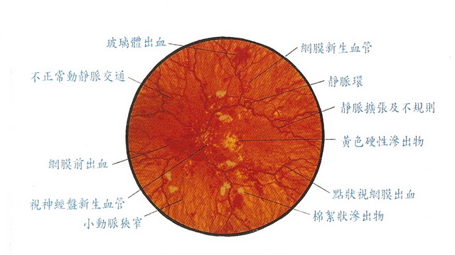 增殖型糖尿病視網膜病變