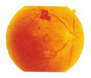 增殖型糖尿病視網膜病變治療前