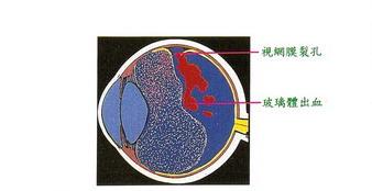網膜已產生裂孔及玻璃體出血
