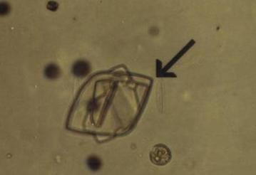 尿酸病患尿液結晶