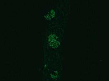 部科介紹解剖病理科-腎臟免疫螢光檢查