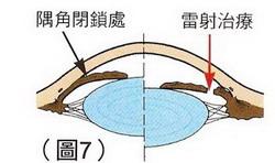 青光眼-圖7