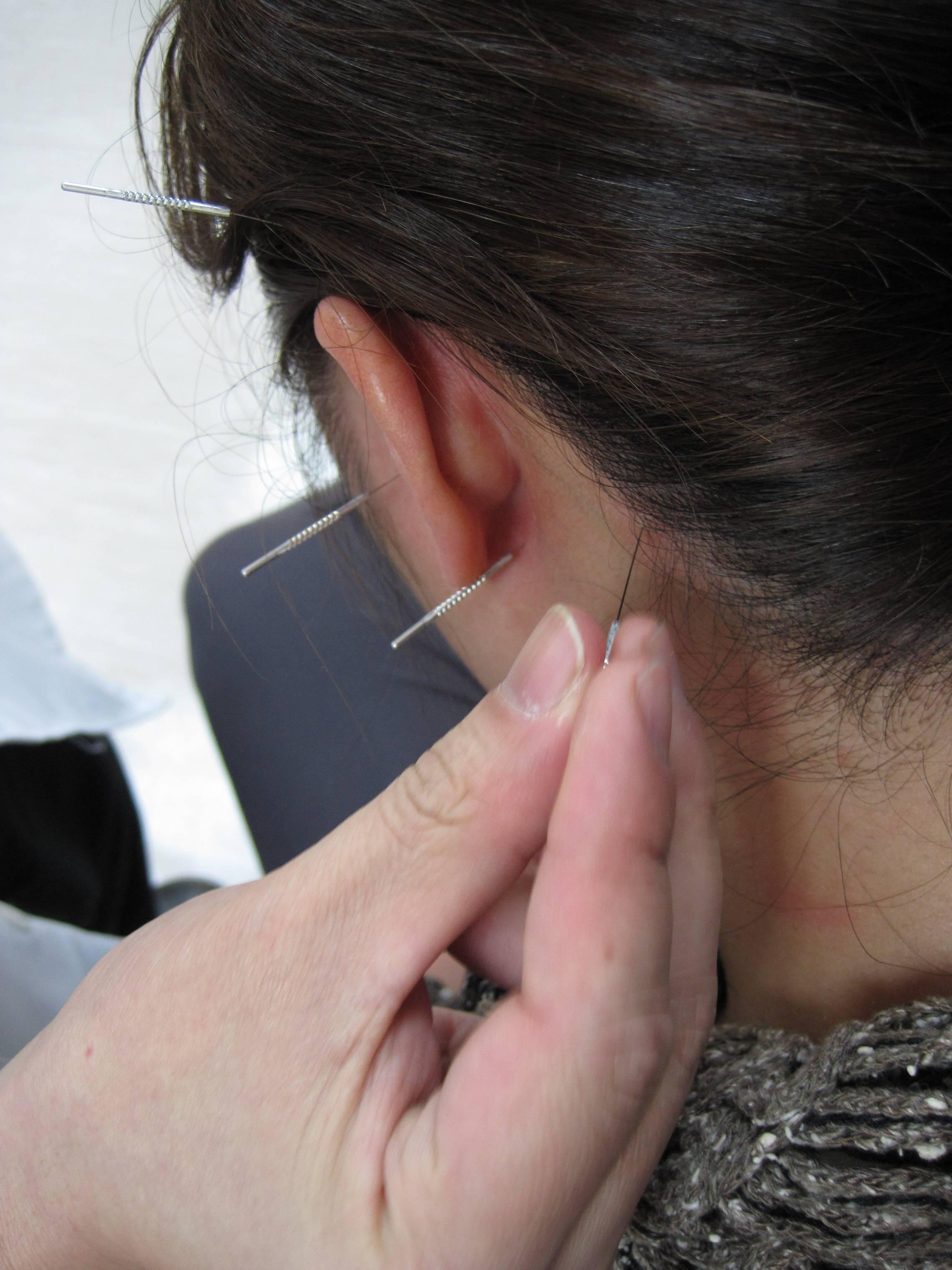 chinese medicine acupunture