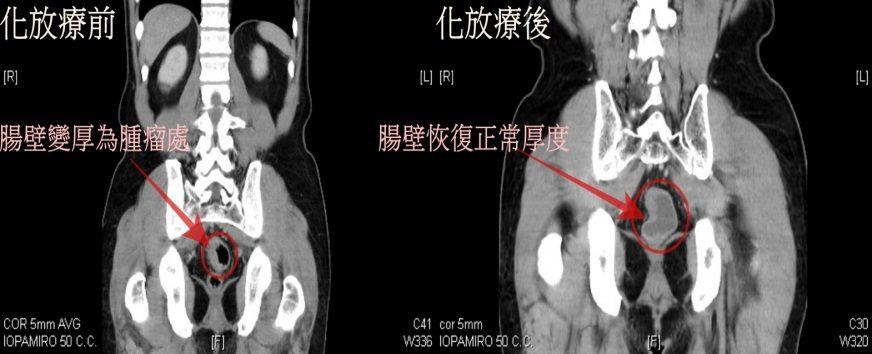 電腦斷層影像檢查化放療前後-2