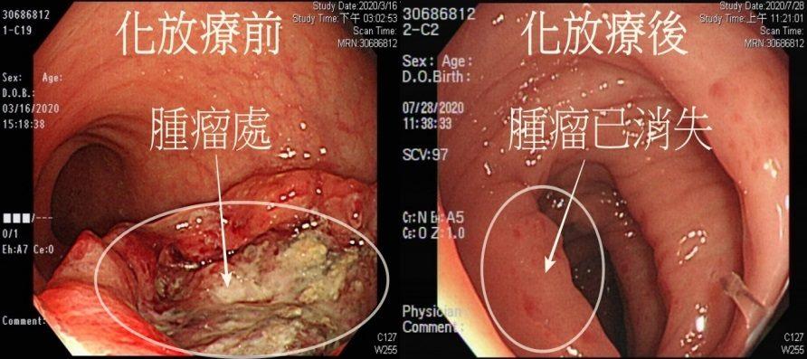 大腸鏡檢查化放療前後