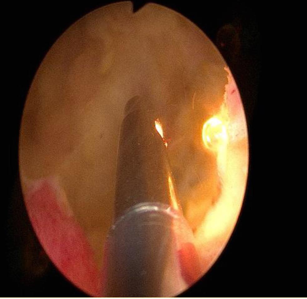 綠光雷射攝護腺手術