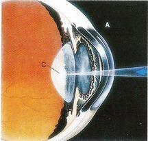 混濁的水晶體阻擾光線進入眼睛