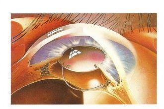 人工水晶體植入後,不需配戴厚重的遠視眼鏡